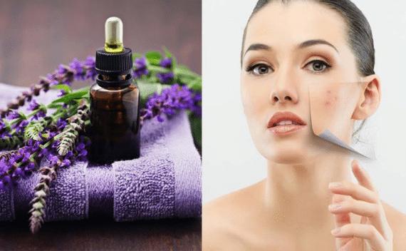 Tinh chất oải hương có tác dụng làm mềm da
