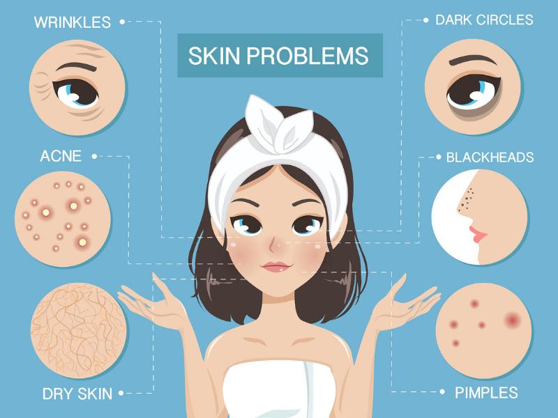 Các loại da phổ biến và cách phân biệt