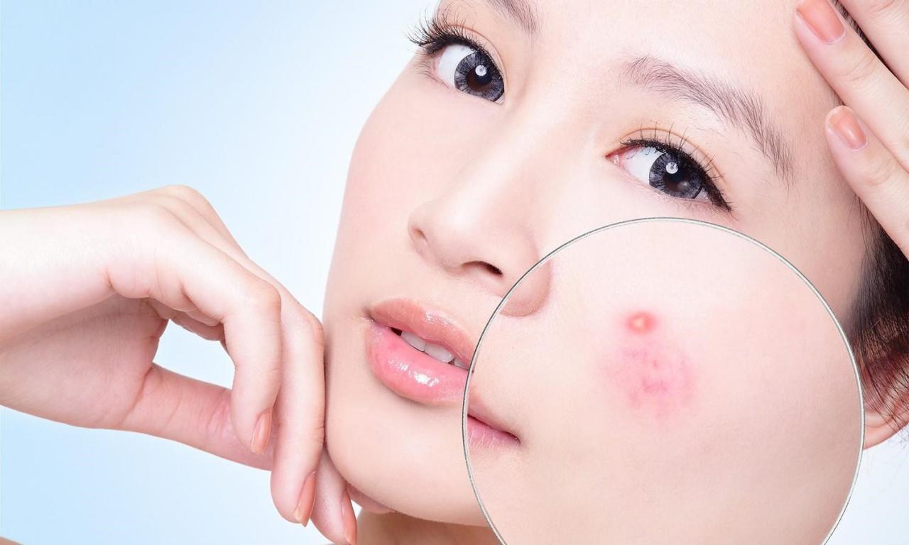Hướng dẫn cách chăm sóc da mặt bị mụn hiệu quả vào mùa hè