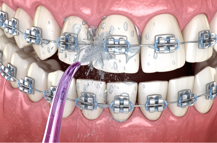 Tăm nước là gì? Tăm nước có thích hợp với những người niềng răng?